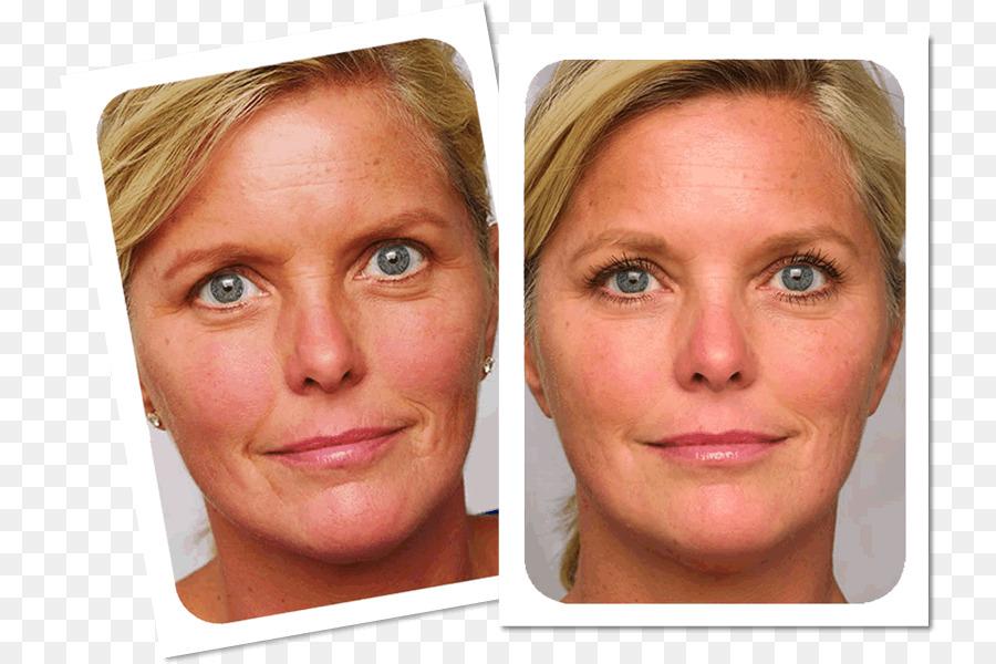 ювелирные тиогамма в косметологии фото до и после последний день отдыха